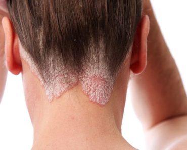 Mujer-con-psoriasis-en-cuero-cabelludo.jpg