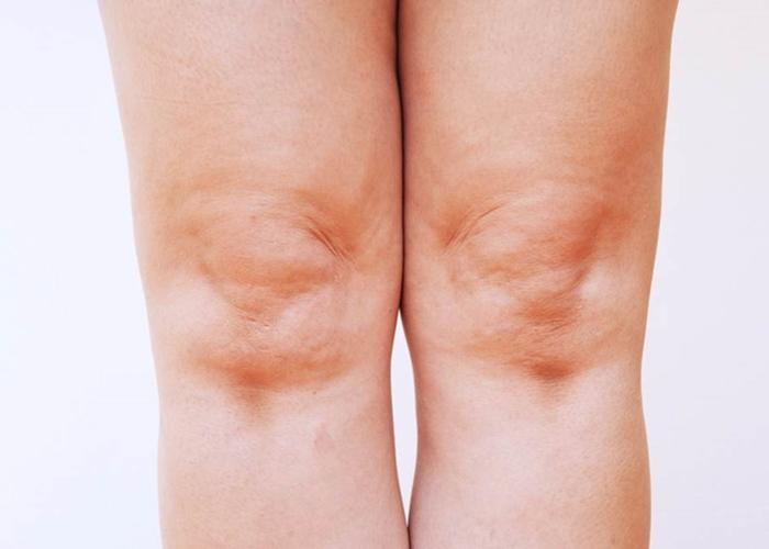 Tratamiento para las rodillas secas