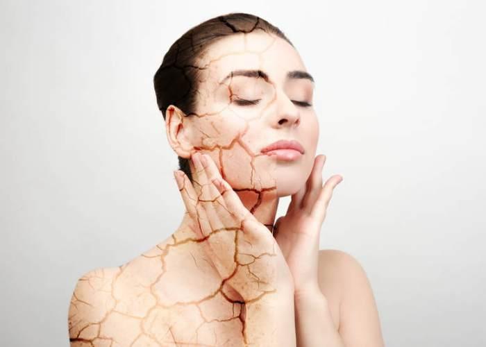 Ce que vous devriez éviter si vous avez la peau sèche